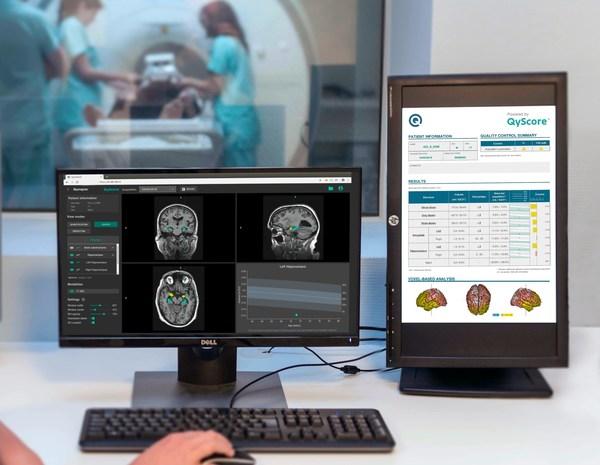 キナプス社(本社フランス)とトゥルー・ポジティブ・メディカル・デバイシズ社(本社カナダ)、脳疾患向け最先端AIプラットフォームの提供で提携