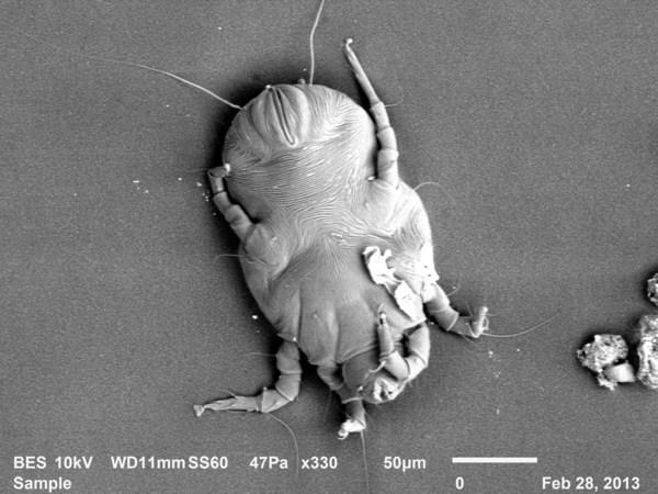 显微镜下的尘螨