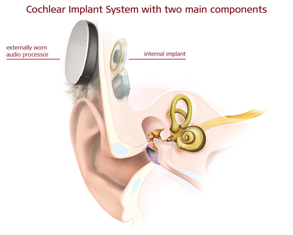MED-EL: First Surgeries Ever in Europe with a Totally Implantable Cochlear Implant