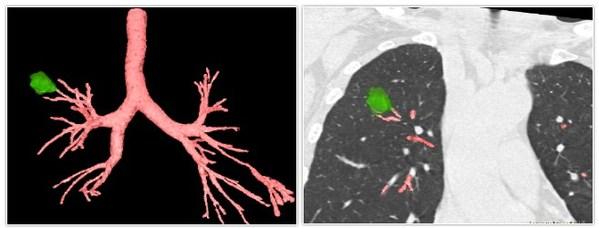 术前3D支气管树血管重建视图