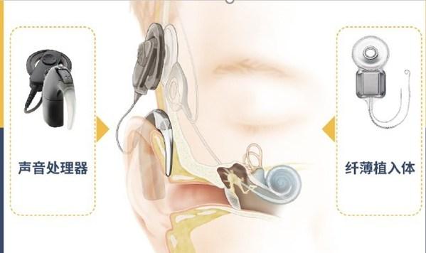 人工耳蜗系统包括植入体和声音处理器两部分。对80分贝以上重度到极重度听力损失患者而言,人工耳蜗是一项成熟有效的解决方案。