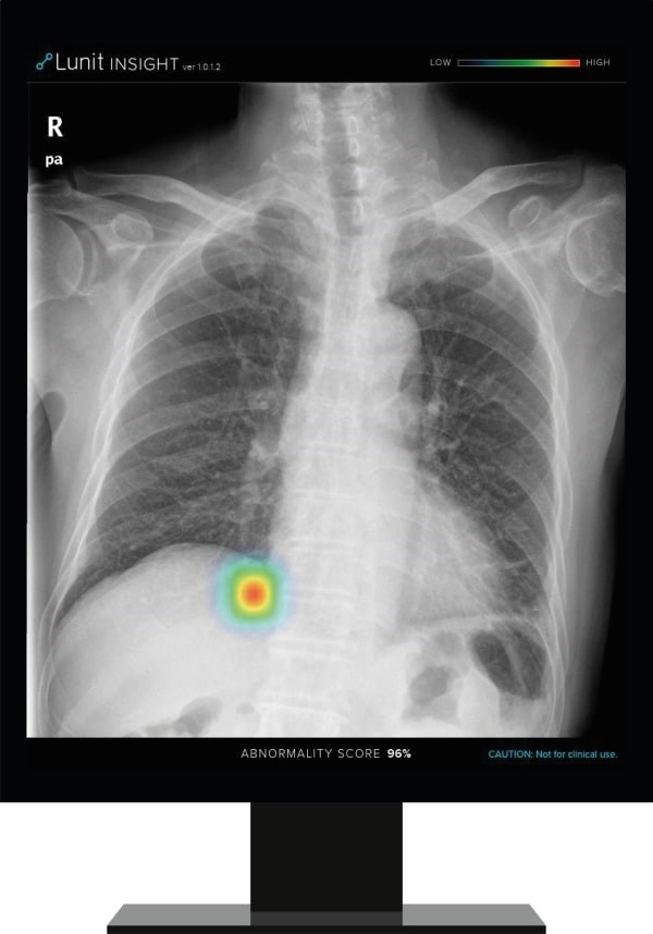 Lunit Announces Partnership to Incorporate its Chest Detection Suite into Philips' Diagnostic X-ray Suite