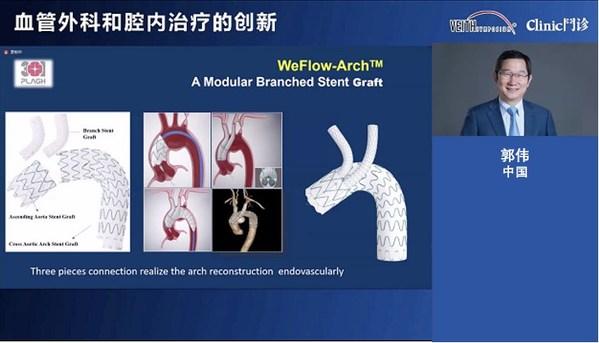 郭伟教授作为WeFlow-Arch™的主要研究者介绍产品创新及临床表现