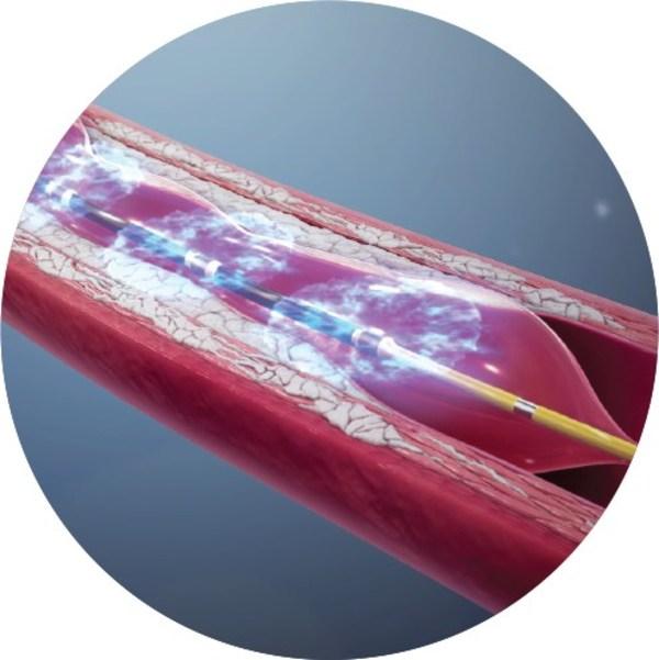 图为Shockwave的产品作用于血管示意图(图源于 Shockwave 官方网站)
