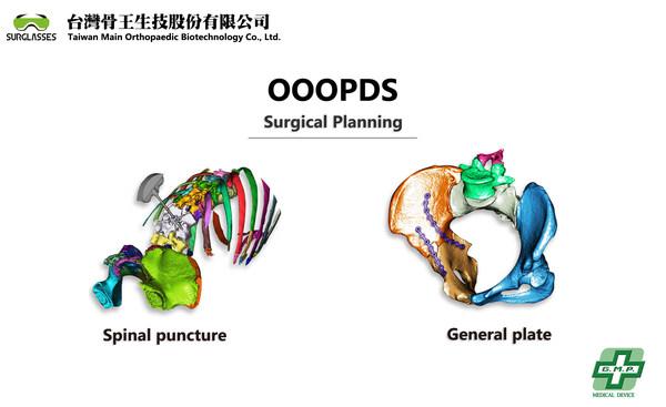 台灣骨王 OOOPDS 取得 TFDA CLASS II 醫療用手術規劃軟體