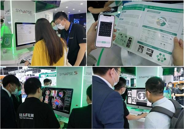 """在CMEF 2021现场,富士胶片展出了企业级医学影像数据平台""""SYNAPSE VNA""""、""""富医睿影互联网云胶片服务""""、PACS 系列产品最新版本""""SYNAPSE 5""""和""""SYNAPSE 3D""""三维影像后处理系统"""