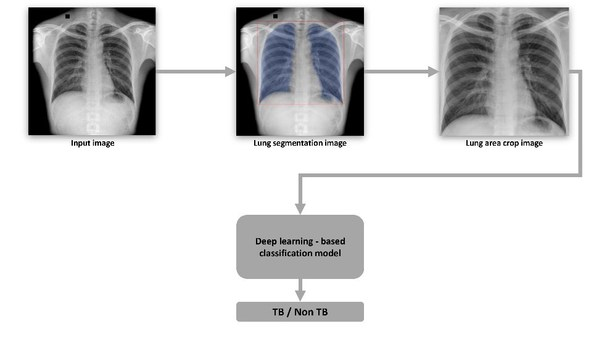 VinBrain and FIT Jointly Release a White Paper on Utilizing Artificial Intelligence in Tuberculosis Screening