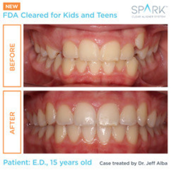 Spark™ Aligners Receive FDA Clearance For Orthodontic Treatment Of Kids, Giving Parents A New Option With Significant Treatment Advantages Over The Leading Competitor