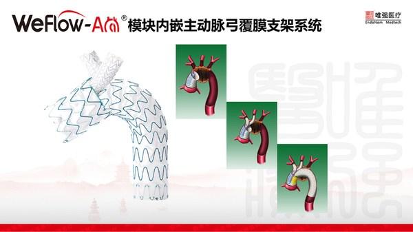 WeFlow-Arch®模块内嵌主动脉弓覆膜支架系统