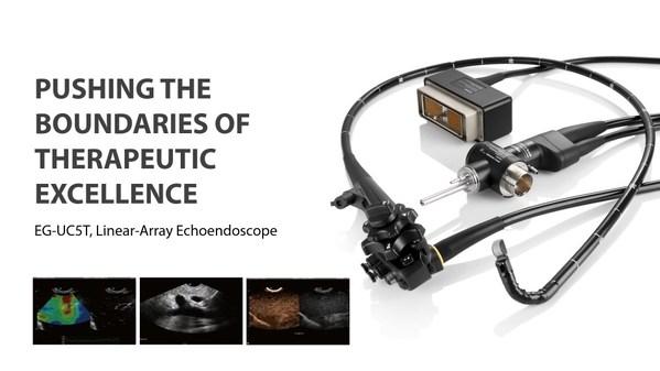 SonoScape의 선형 배열 내시경 초음파 EG-UC5T, CE 마크 획득