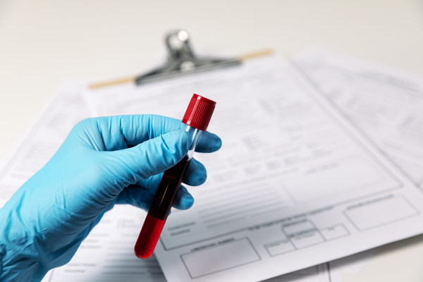 Trublood® is an non-invasive liquid biopsy for diagnosis of prostate cancer