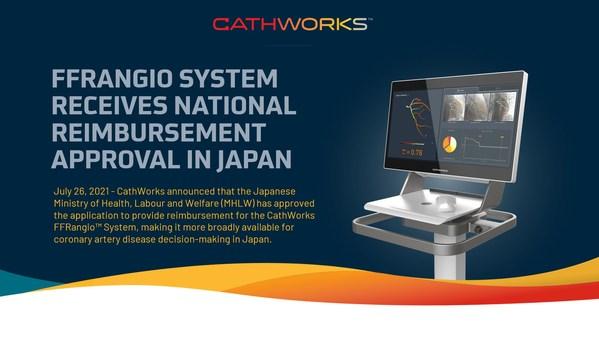 キャスワークスFFRangio(TM)システム、日本で保険収載される。
