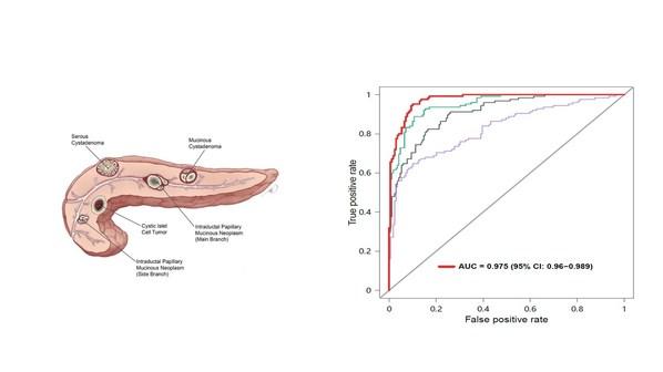 和瑞基因早筛技术检测胰腺癌性能卓越